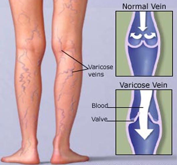 How Vericose Veins Are Formed